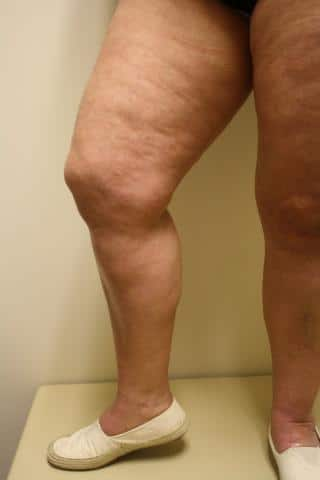 Photo of Legs After Vein Treatement