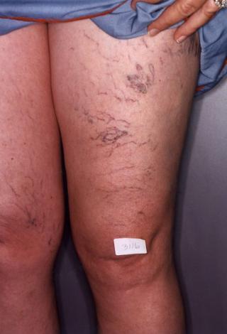 Legs before Spider Vein Treatment