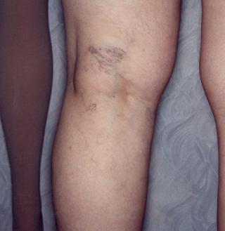 before undergoing vein treatment on back of knee
