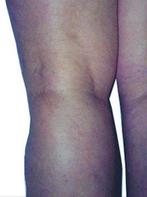 Legs After Spider vein treatment