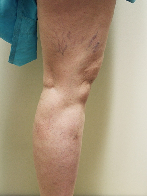 Legs Before Spider vein treatment