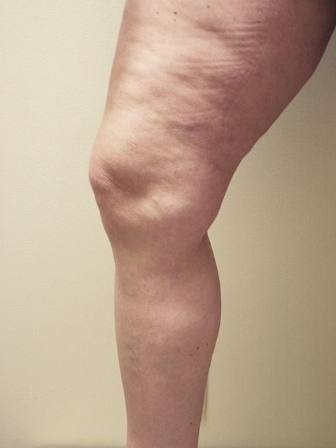 Legs After Varicose vein treatment
