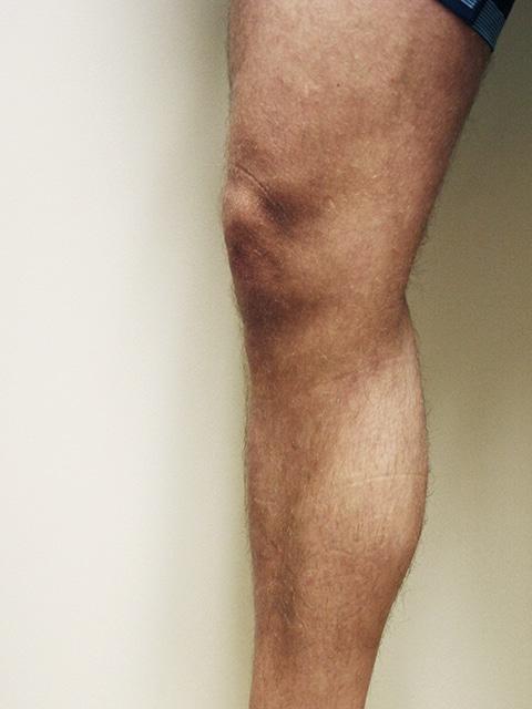 Legs After Varicose vein treatment