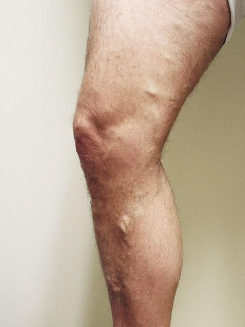Legs Before Varicose vein treatment