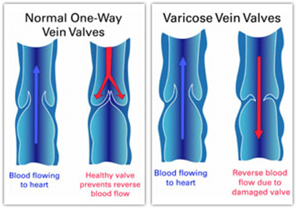 Vein Valve Diagram